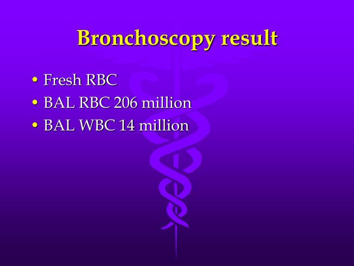 Bronchoscopy result