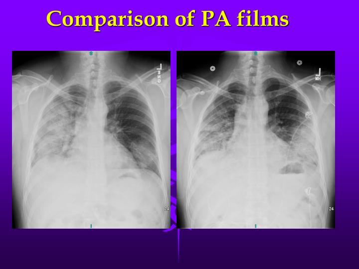Comparison of PA films
