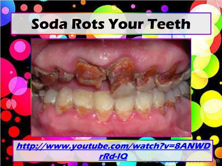 Soda Rots Your Teeth