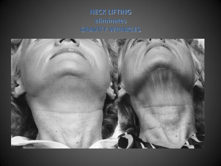 NECK LIFTING