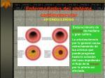 enfermedades del sistema cardiovascular arteriosclerosis