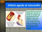 infarto agudo al miocardio
