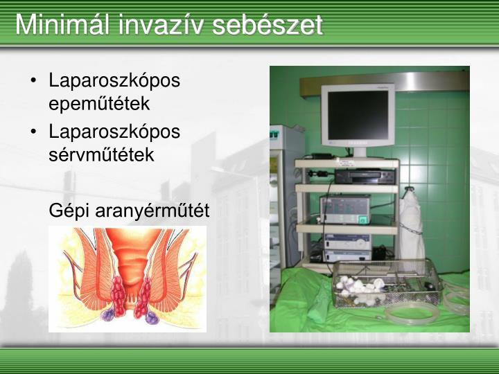 Minimál invazív sebészet