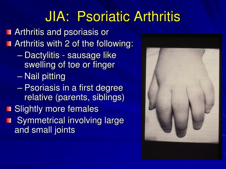 JIA:  Psoriatic Arthritis