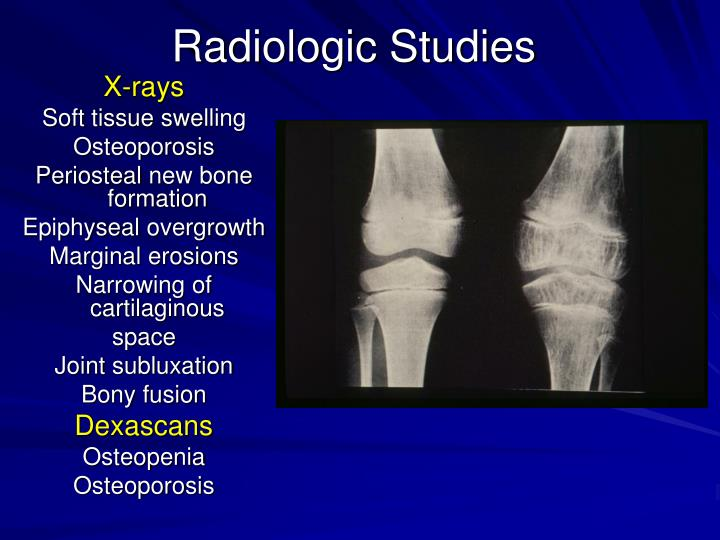 Radiologic Studies