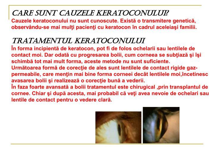 Care sunt cauzele keratoconului?