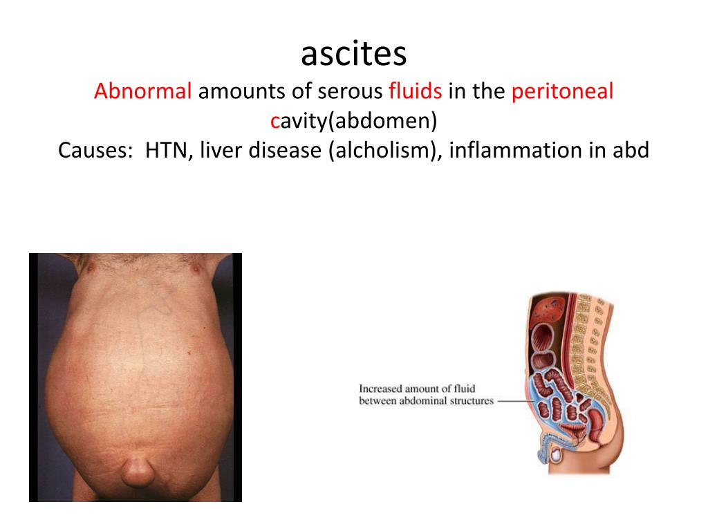 PPT - appendicitis Inflammation of the appendix from a ...