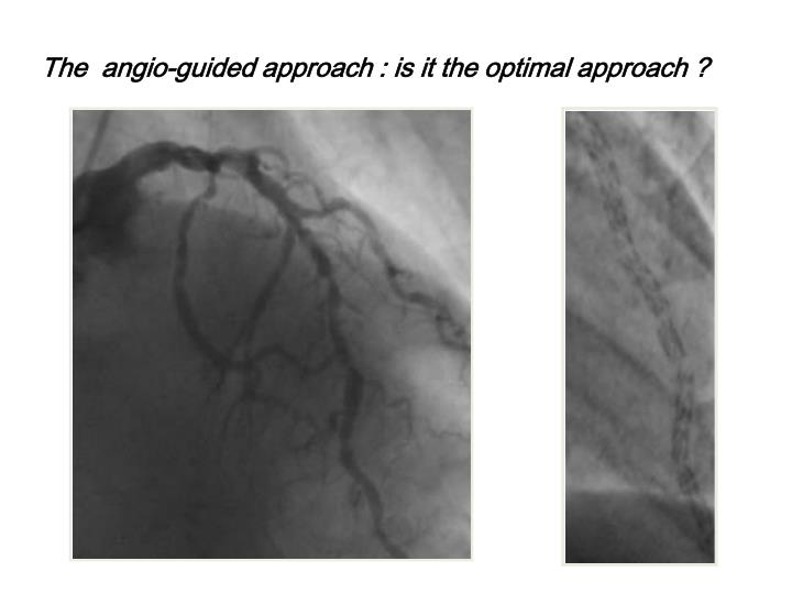 The  angio-guided approach : is it the optimal approach ?