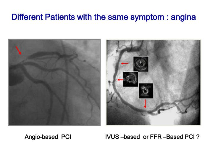 Different Patients with the same symptom : angina