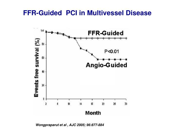 FFR-Guided  PCI in Multivessel Disease