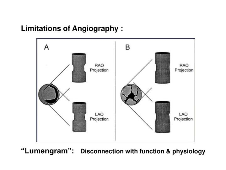 Limitations of Angiography :