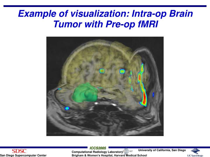 Example of visualization: Intra-op Brain Tumor with Pre-op fMRI