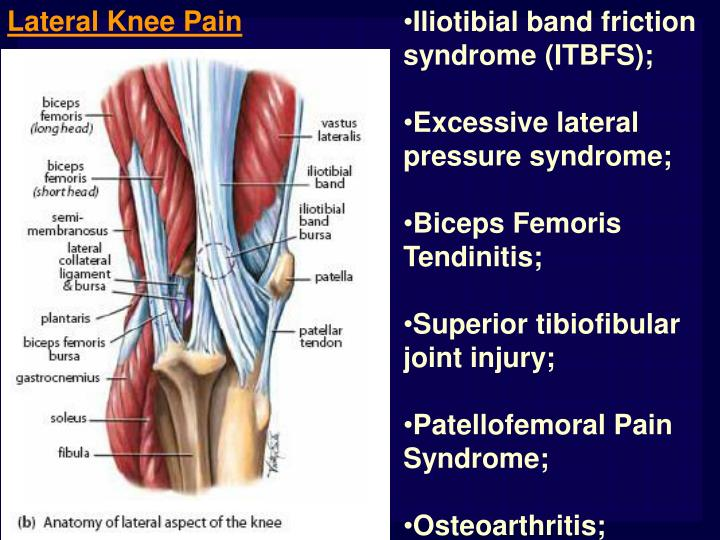 Ppt Lateral Medial And Posterior Knee Pain Powerpoint