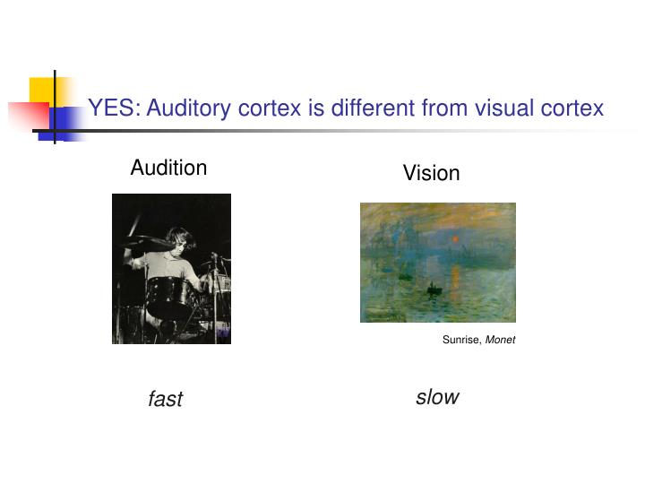 YES: Auditory cortex is different from visual cortex