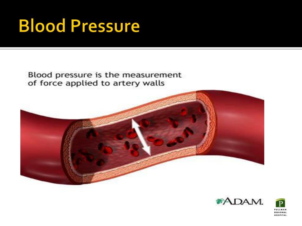 PPT - Arterial Line Set-up and Hemodynamic Monitoring..