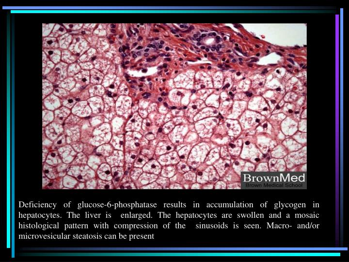 Deficiency of glucose-6-phosphatase results in accumulation of glycogen in hepatocytes. The liver is  enlarged. The hepatocytes are swollen and a mosaic histological pattern with compression of the  sinusoids is seen. Macro- and/or microvesicular steatosis can be present