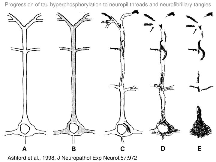Progression of tau hyperphosphorylation to neuropil threads and neurofibrillary tangles