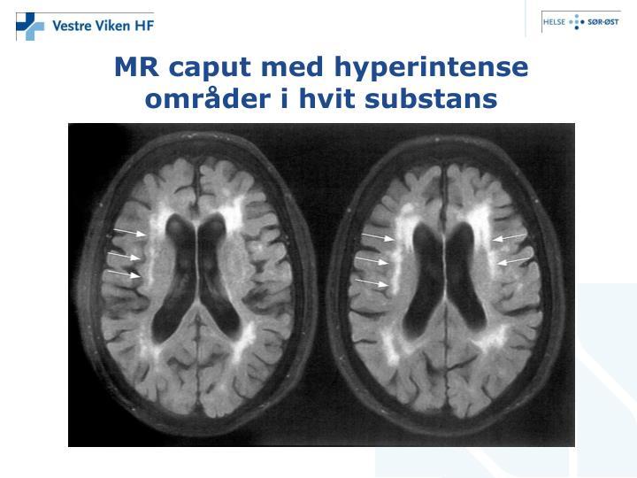 MR caput med hyperintense områder i hvit substans