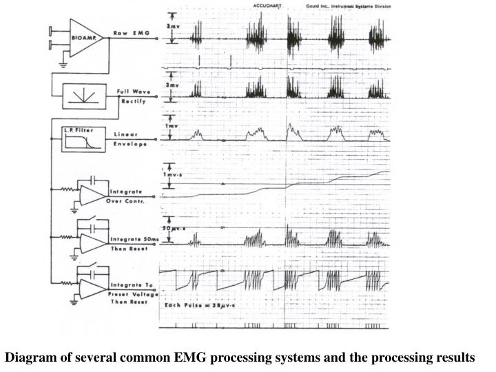 Diagram of several common EMG processing systems and the processing results