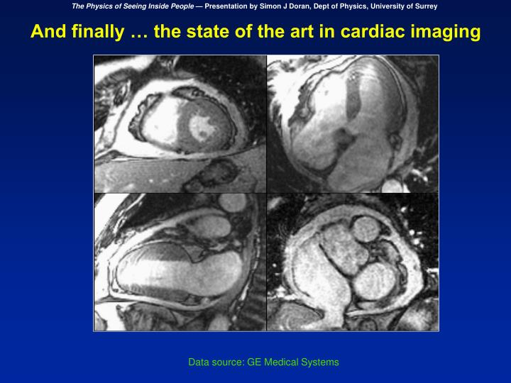 And finally … the state of the art in cardiac imaging