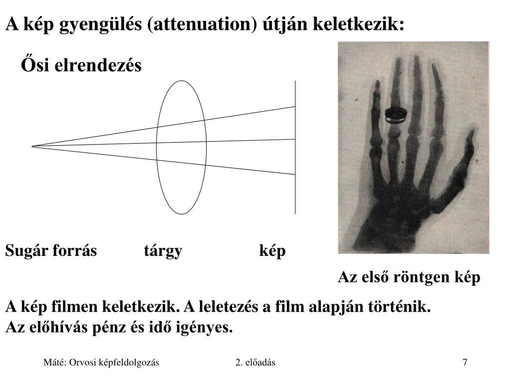 röntgen látás a tökéletlen látás kezelése