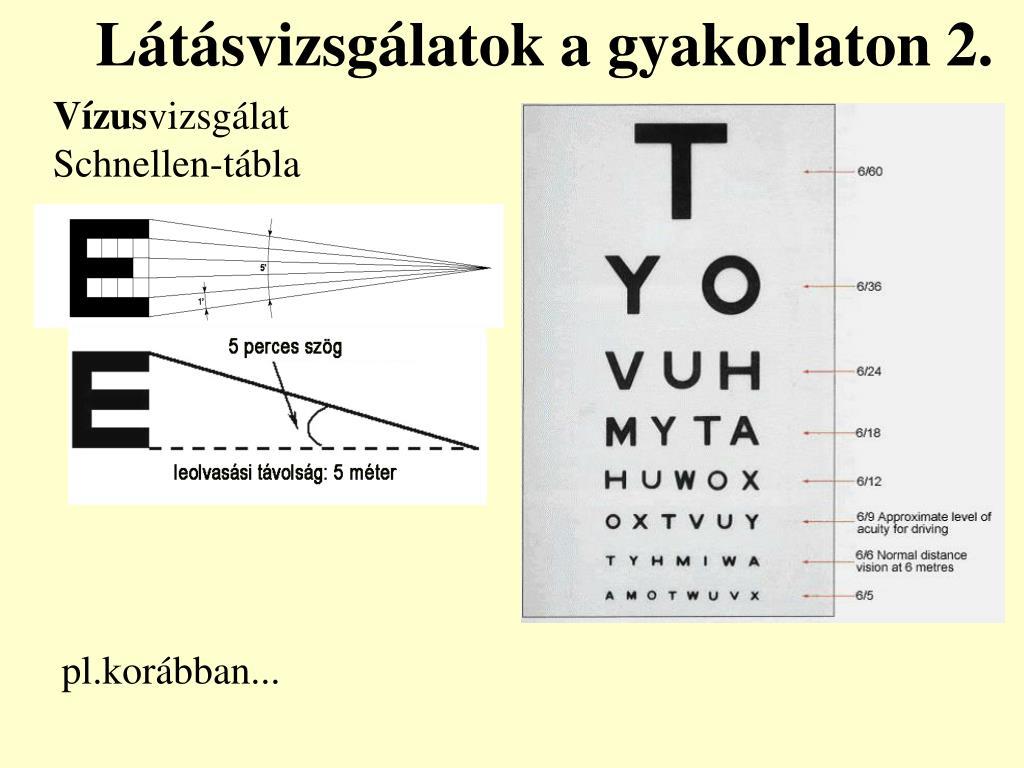 látásvizsgálatok 6 látás a hasnyálmirigy-gyulladásból