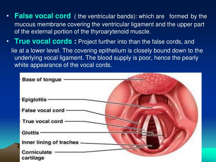 False vocal cord