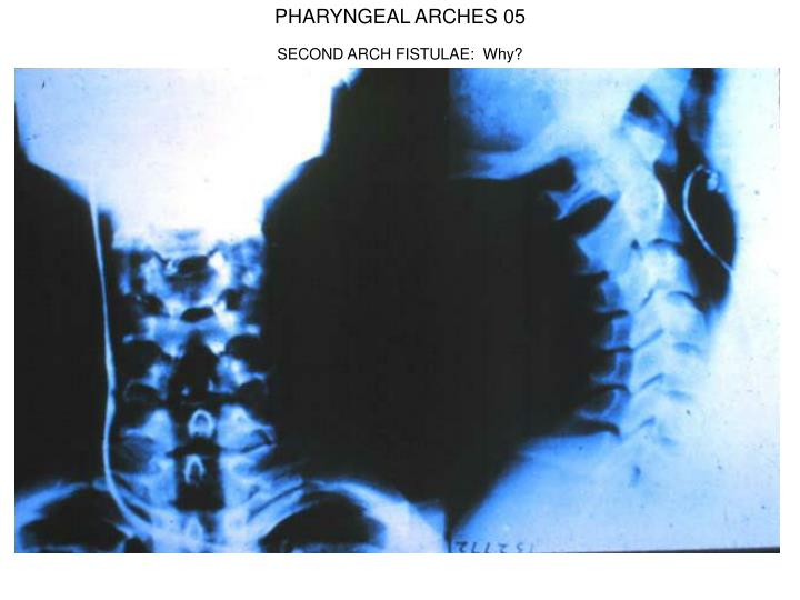 PHARYNGEAL ARCHES 05
