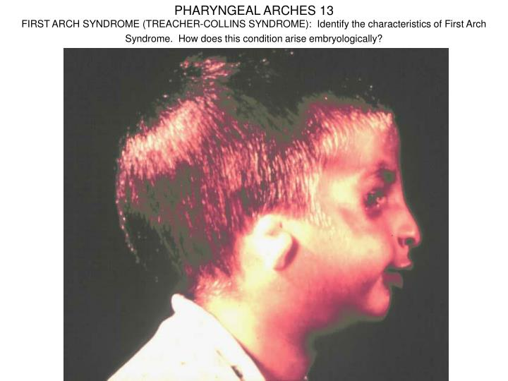 PHARYNGEAL ARCHES 13