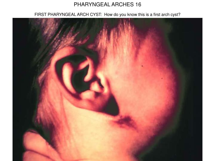 PHARYNGEAL ARCHES 16